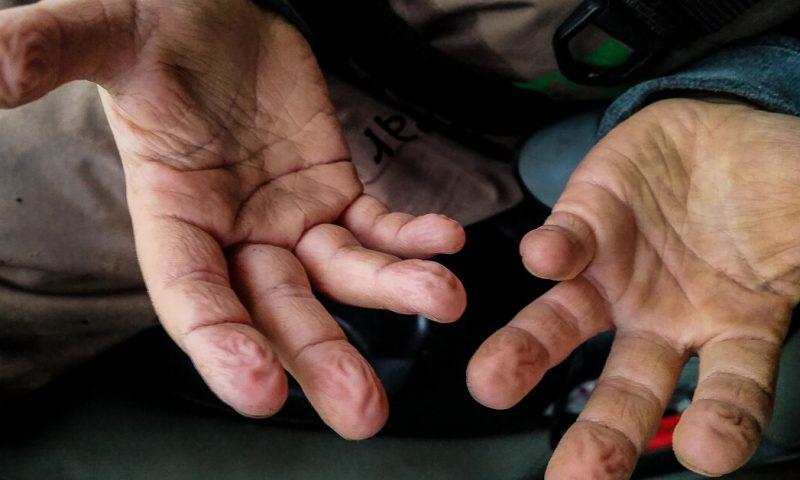 Troutbitten Hands Boy